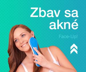 Faceupakne.sk